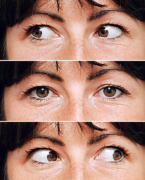 Рекомендации после операции катаракта глаза